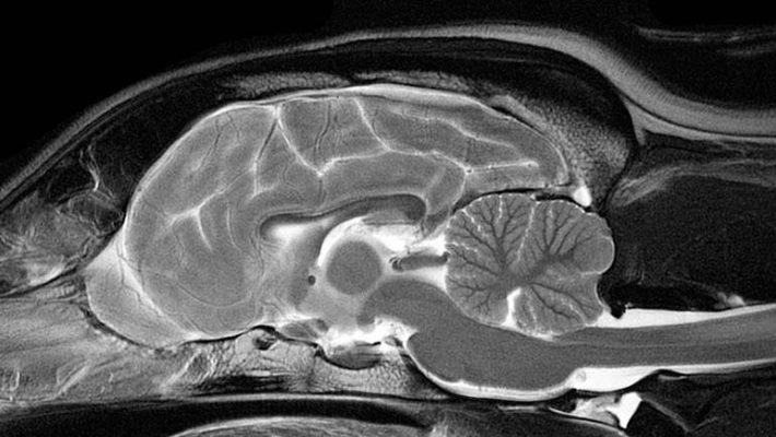 MRI Görüntüleme Artık Rutin